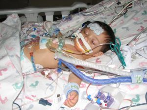 Jake's second heart surgery. 10 months old